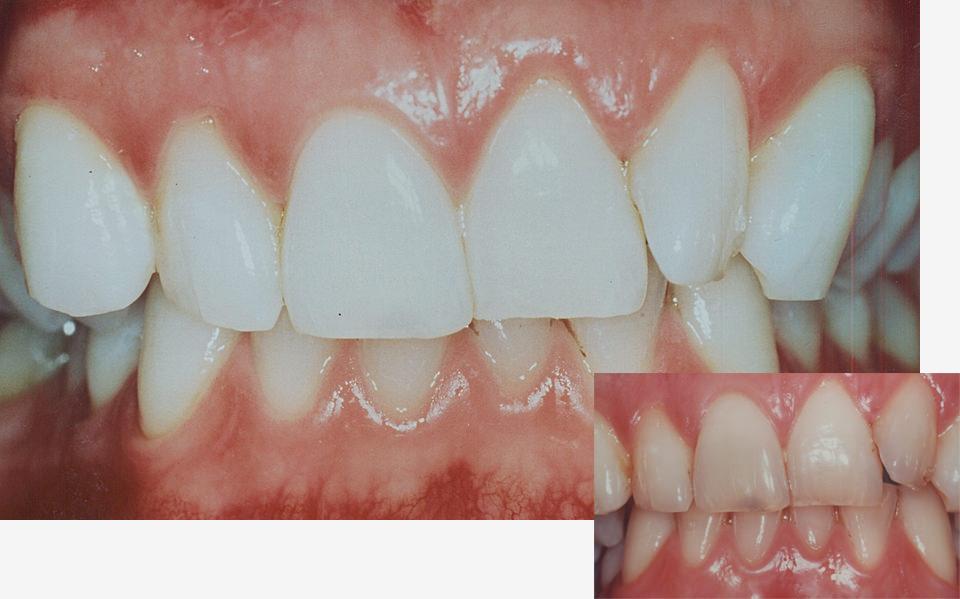 bleaching-zahnarzt-duelmen-nahe-muenster-1