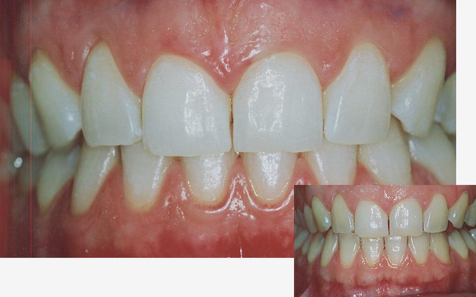 bleaching-zahnarzt-duelmen-nahe-muenster-2