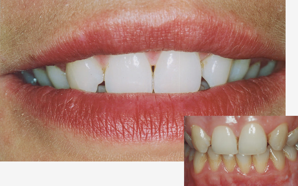 bleaching-zahnarzt-duelmen-nahe-muenster-4 (2)