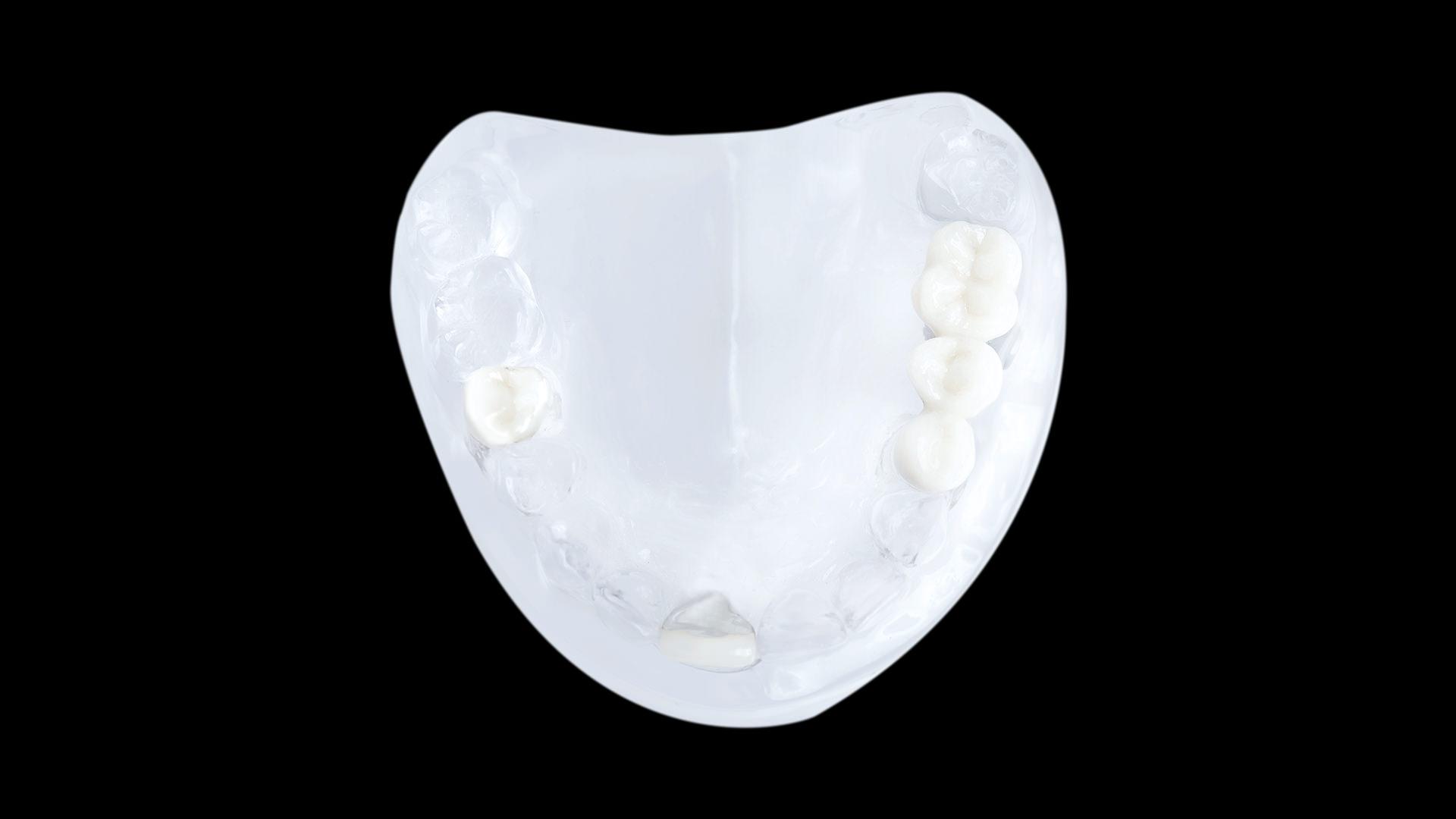implantatbruecke-4