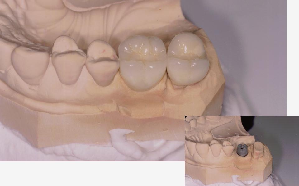 implantate-zahnarzt-duelmen-nahe-muenster-1