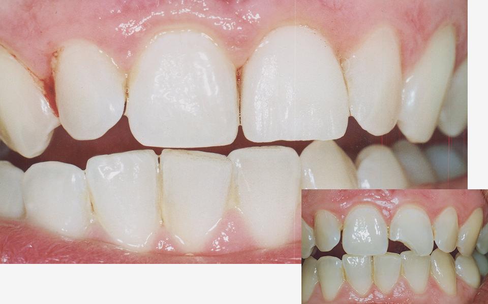bleaching-veneer-zahnarzt-duelmen-nahe-muenster-1-1